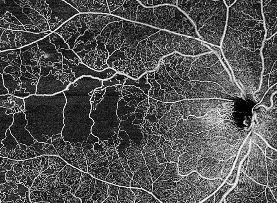 ZEISS PLEX Elite SS-OCT HD Angiography